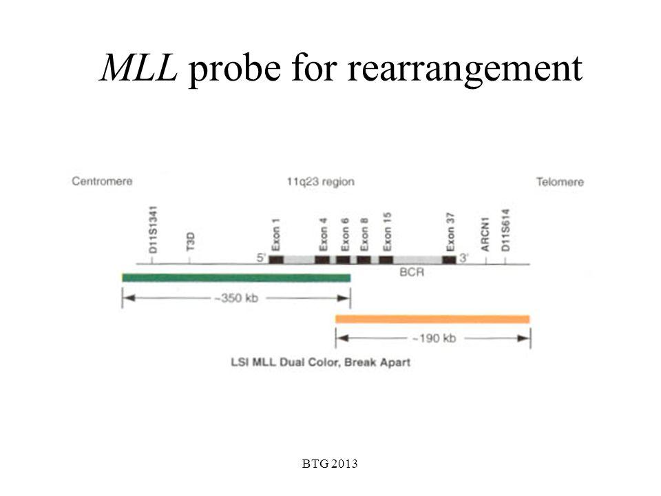 MLL probe for rearrangement