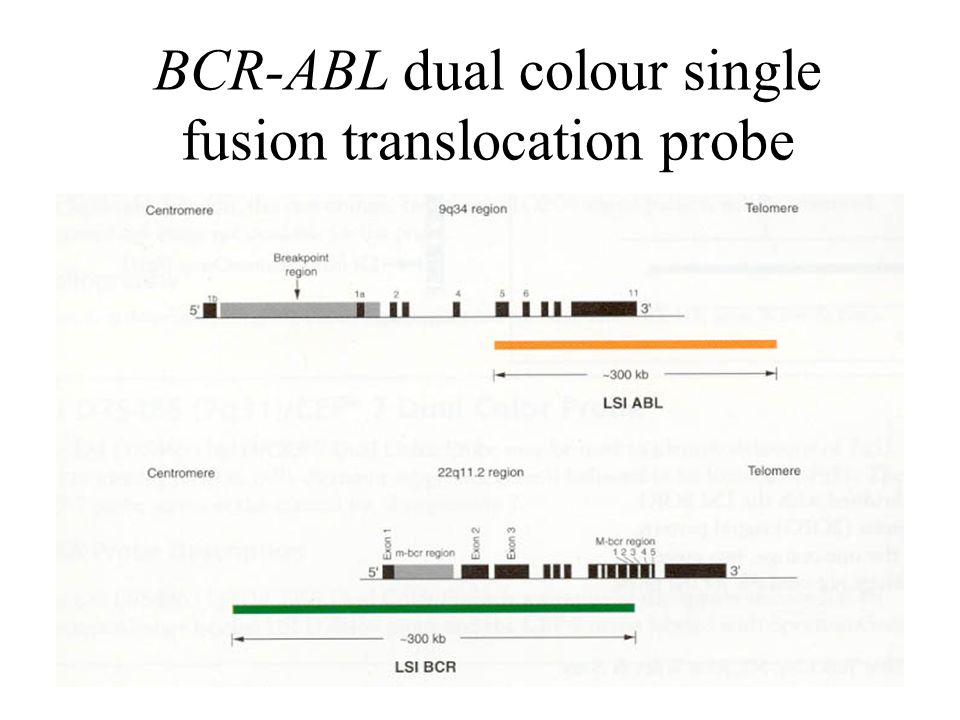 BCR-ABL dual colour single fusion translocation probe