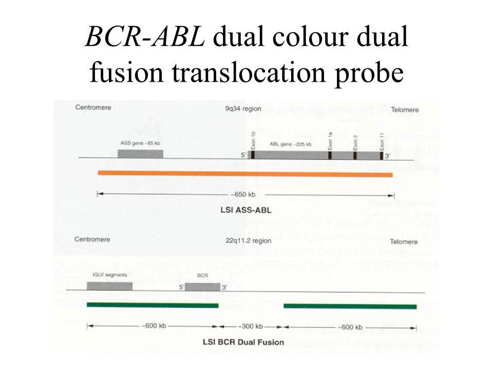 BCR-ABL dual colour dual fusion translocation probe