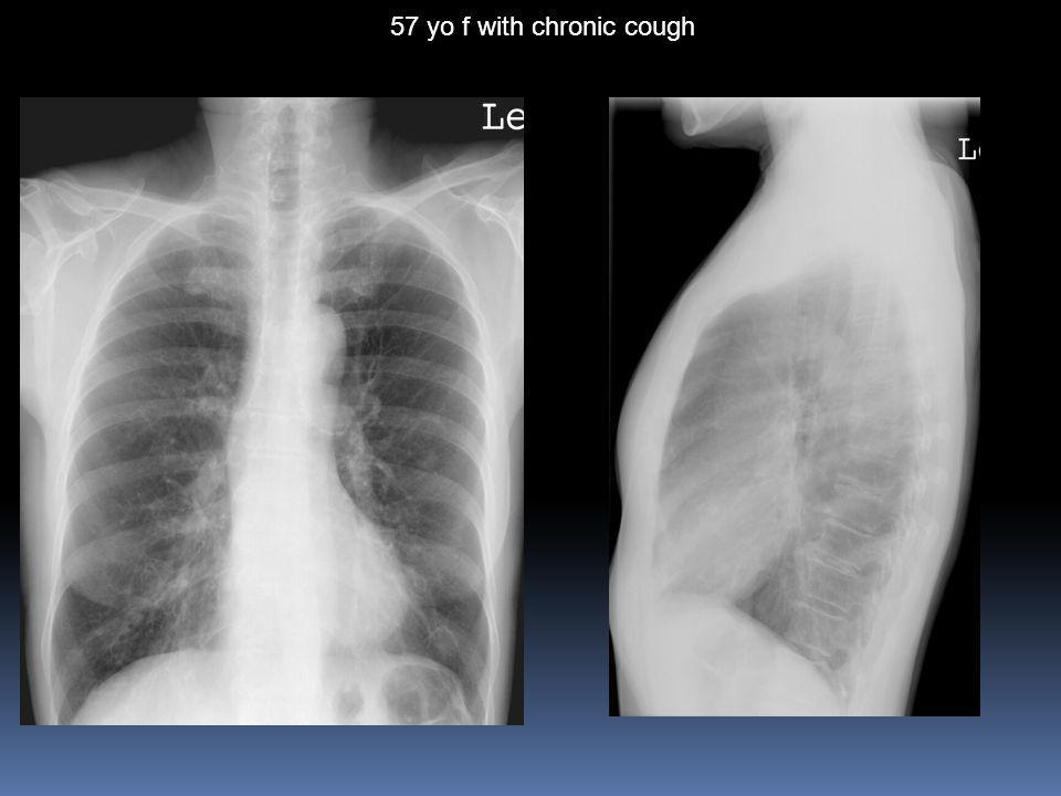 57 yo f with chronic cough