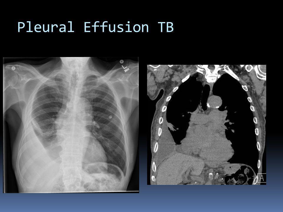 Pleural Effusion TB