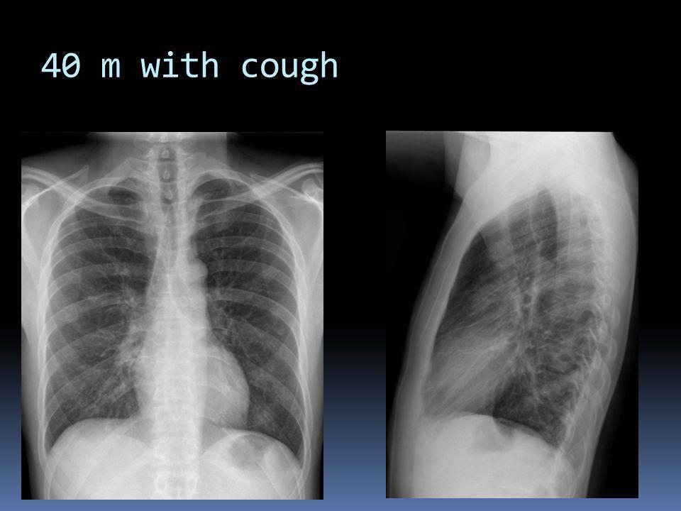 40 m with cough