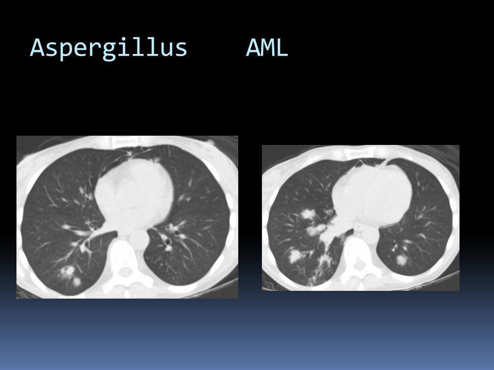 Aspergillus AML