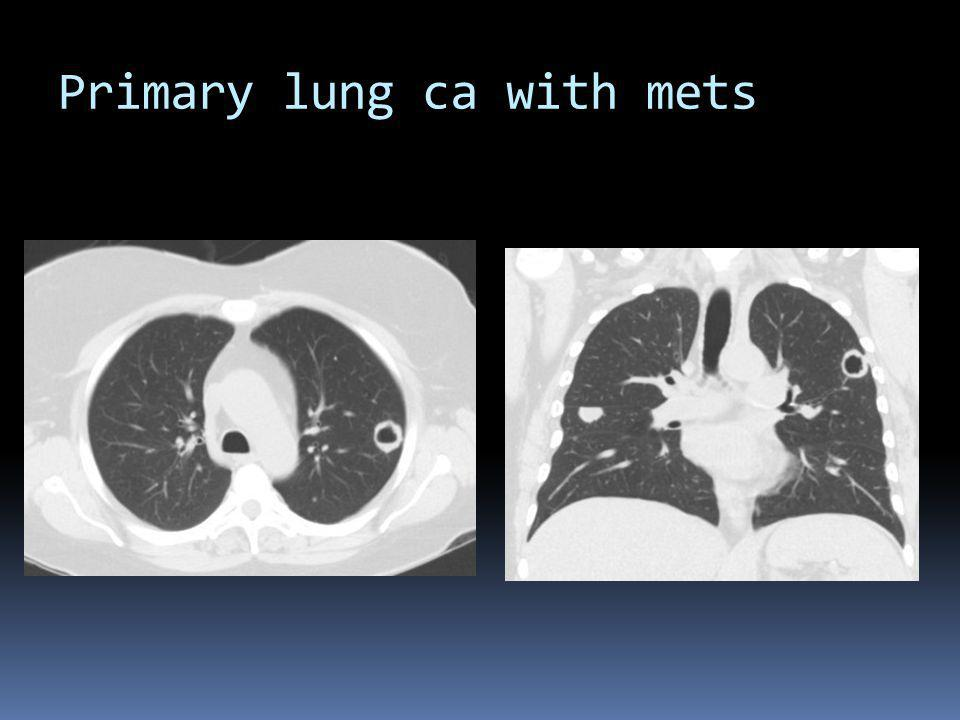 Primary lung ca with mets