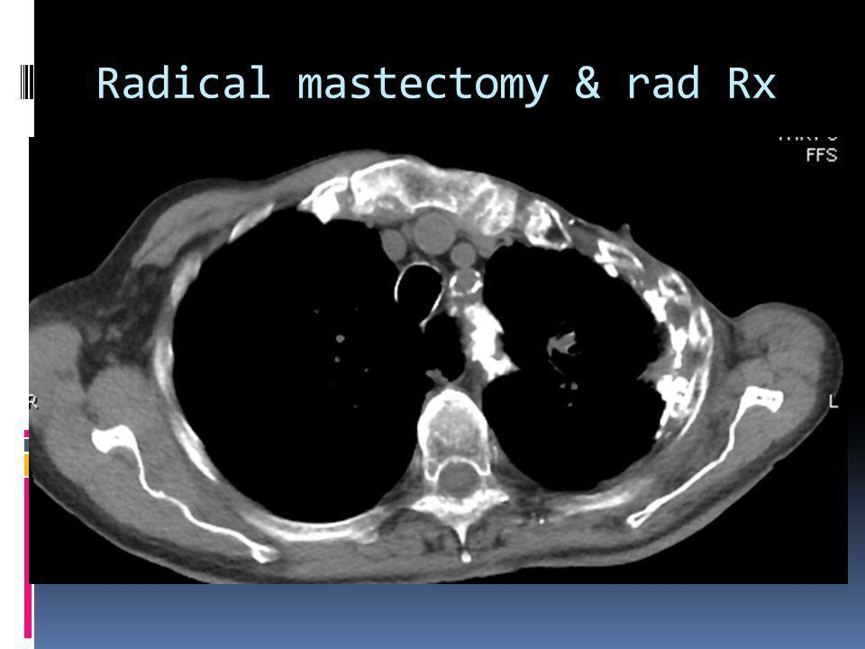 Radical mastectomy & rad Rx