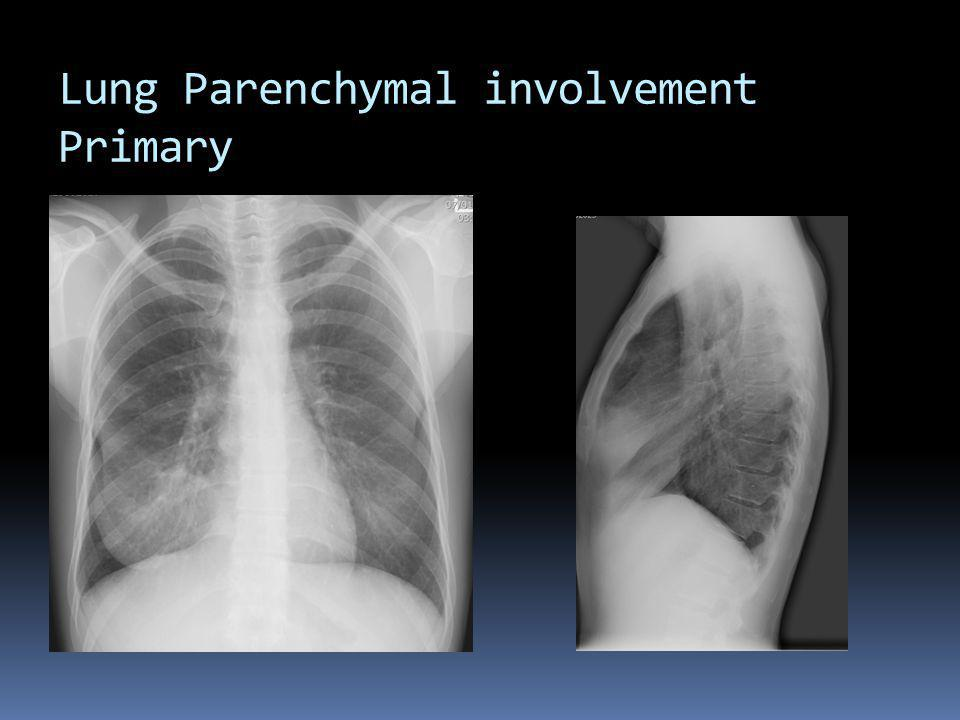 Lung Parenchymal involvement Primary