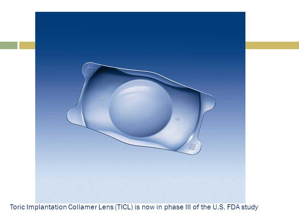 Toric Implantation Collamer Lens (TICL) is now in phase III of the U.S. FDA study