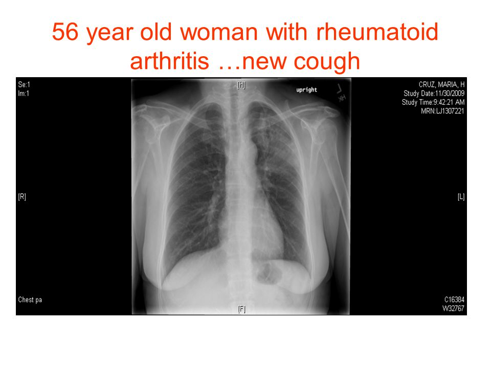 56 year old woman with rheumatoid arthritis …new cough