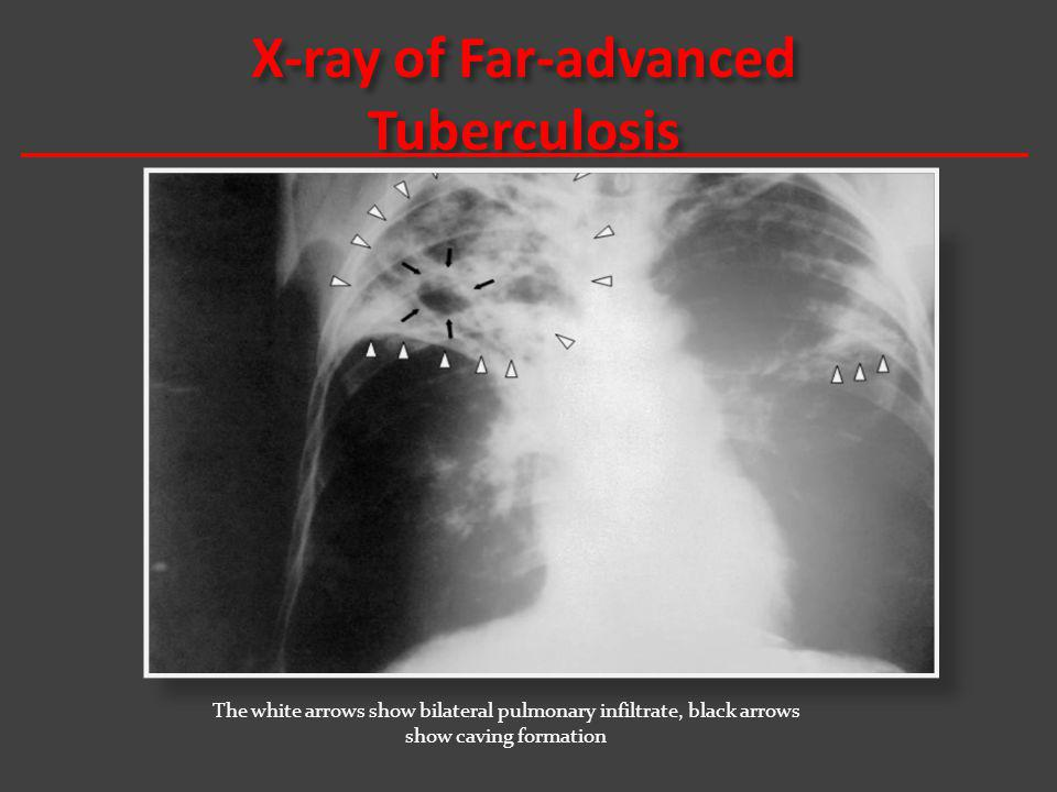 X-ray of Far-advanced Tuberculosis