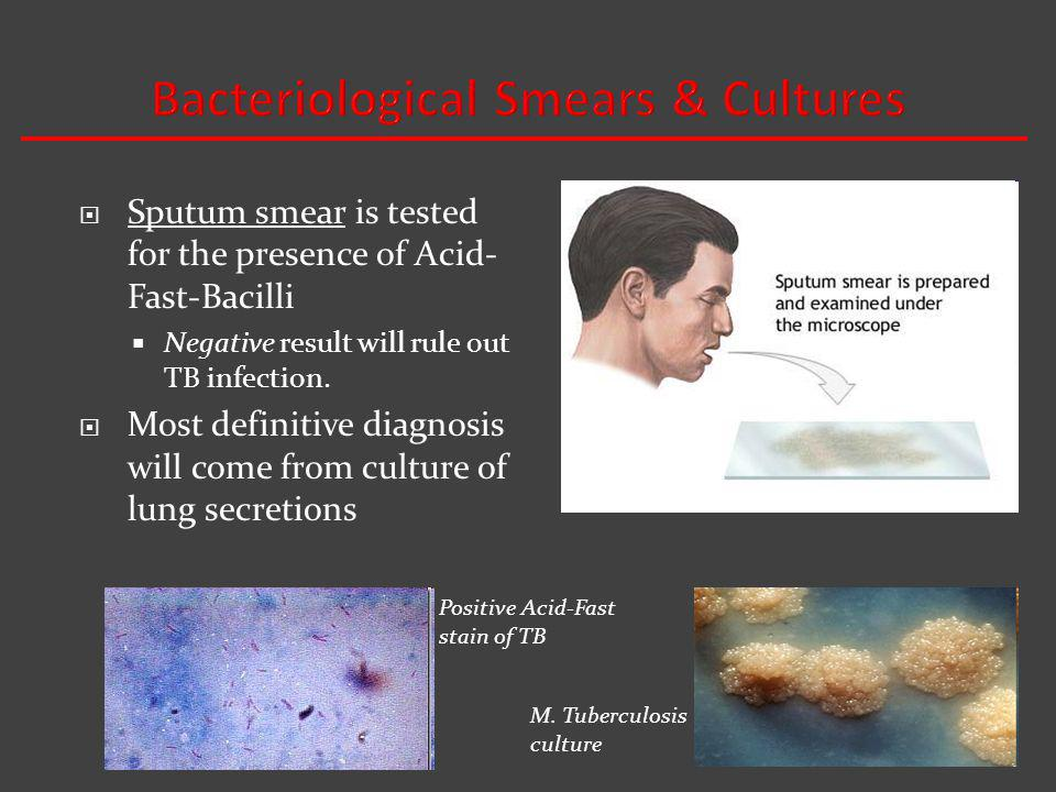 Bacteriological Smears & Cultures