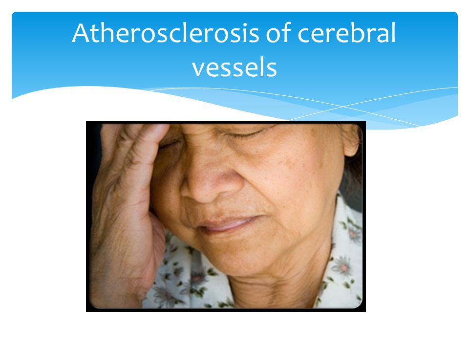 Atherosclerosis of cerebral vessels