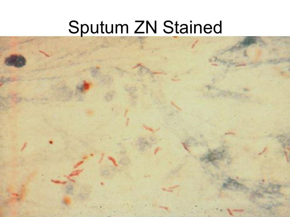Sputum ZN Stained