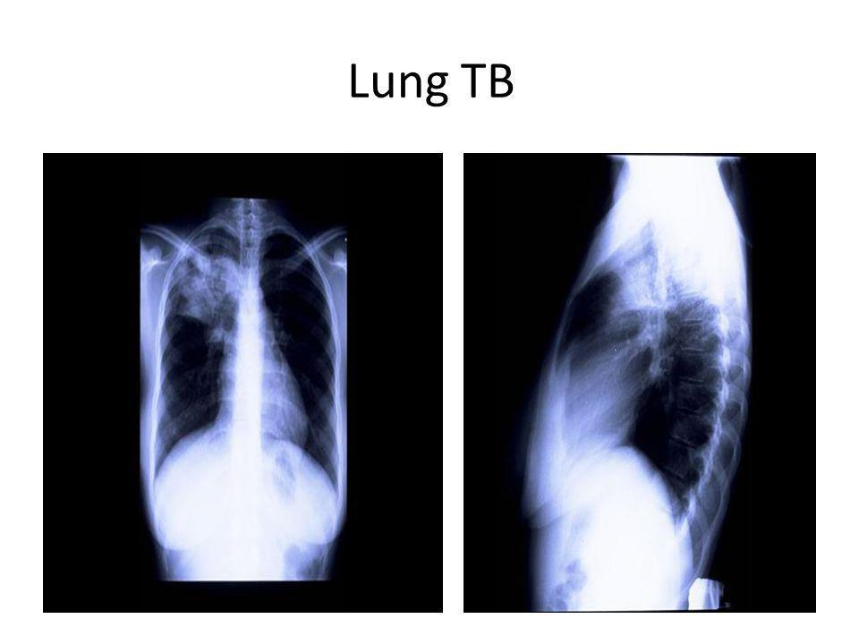 Lung TB