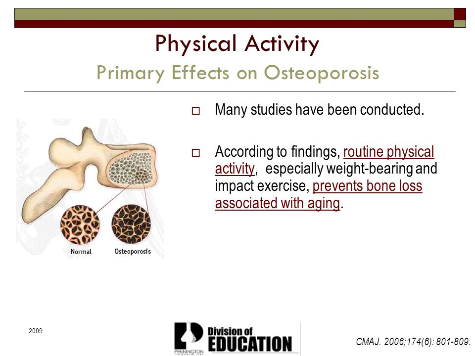 Physical Activity Primary Effects on Osteoporosis