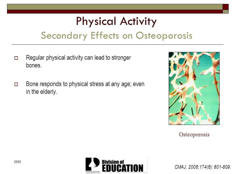 Physical Activity Secondary Effects on Osteoporosis