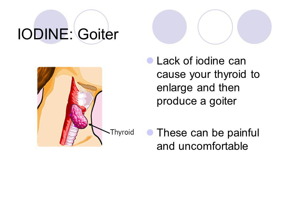 IODINE: Goiter Lack of iodine can cause your thyroid to enlarge and then produce a goiter. These can be painful and uncomfortable.