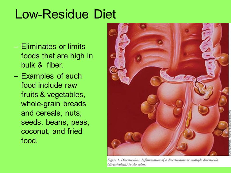 Low-Residue Diet Eliminates or limits foods that are high in bulk & fiber.
