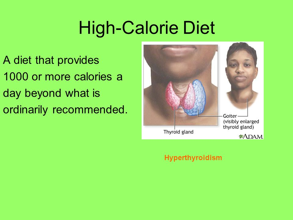 High-Calorie Diet A diet that provides 1000 or more calories a