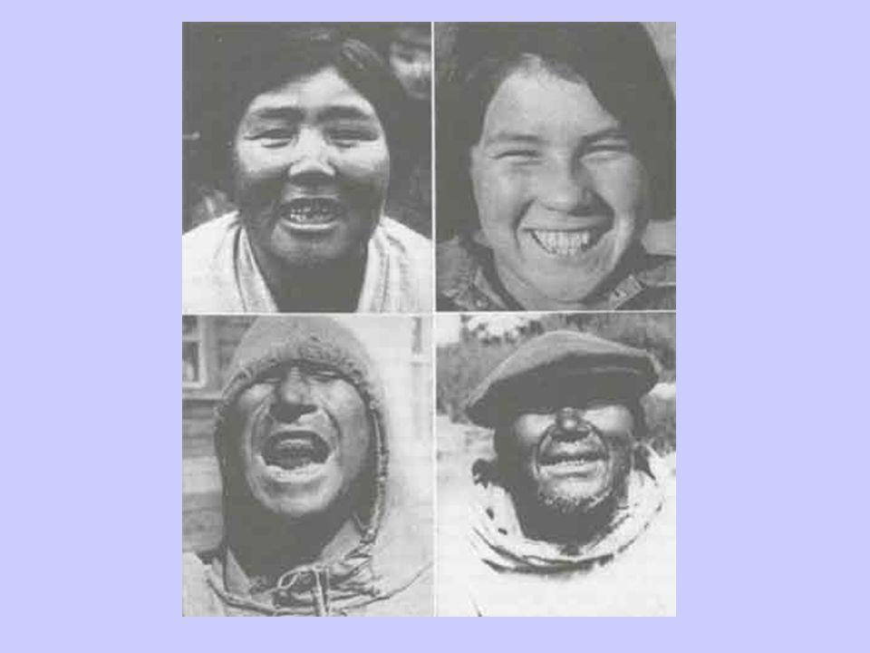 Primitive Eskimos
