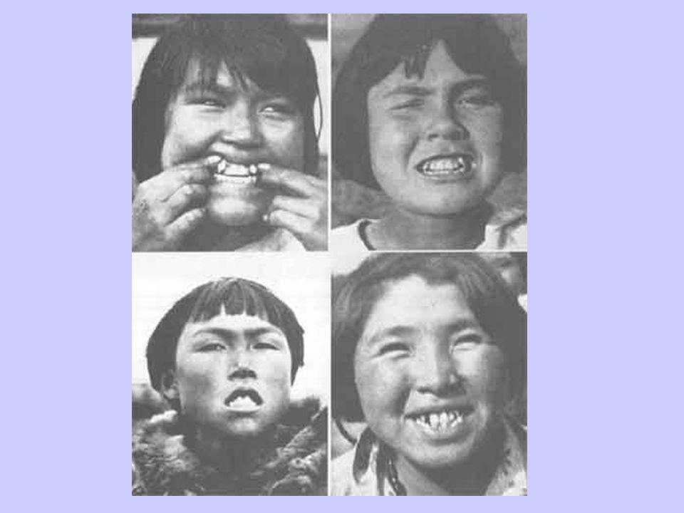 1st Gen Eskimos