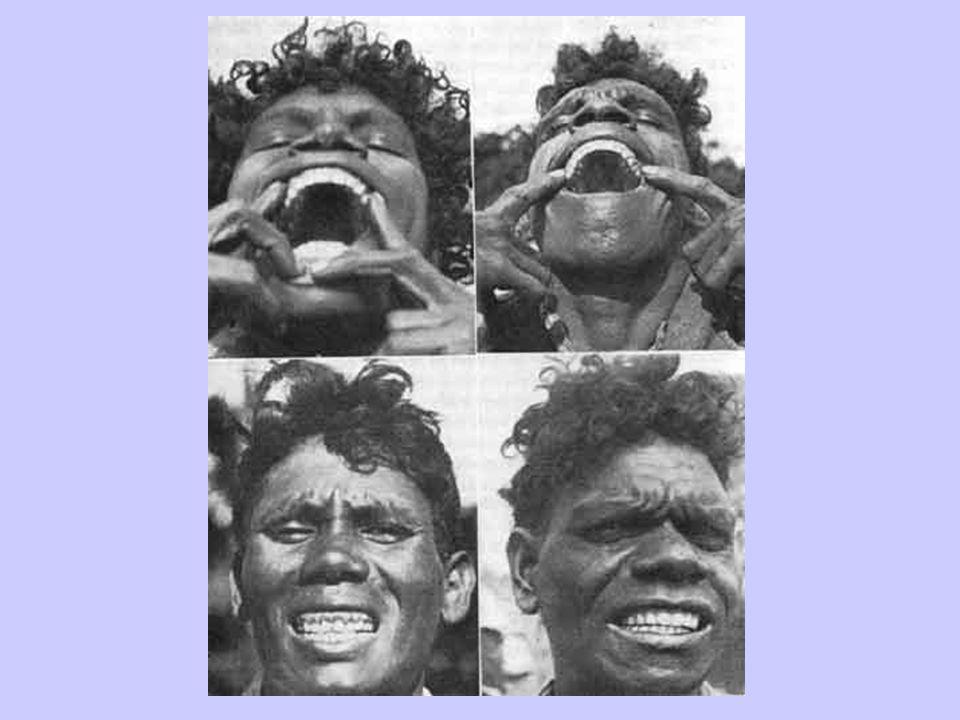 Primitive Aborigine Women