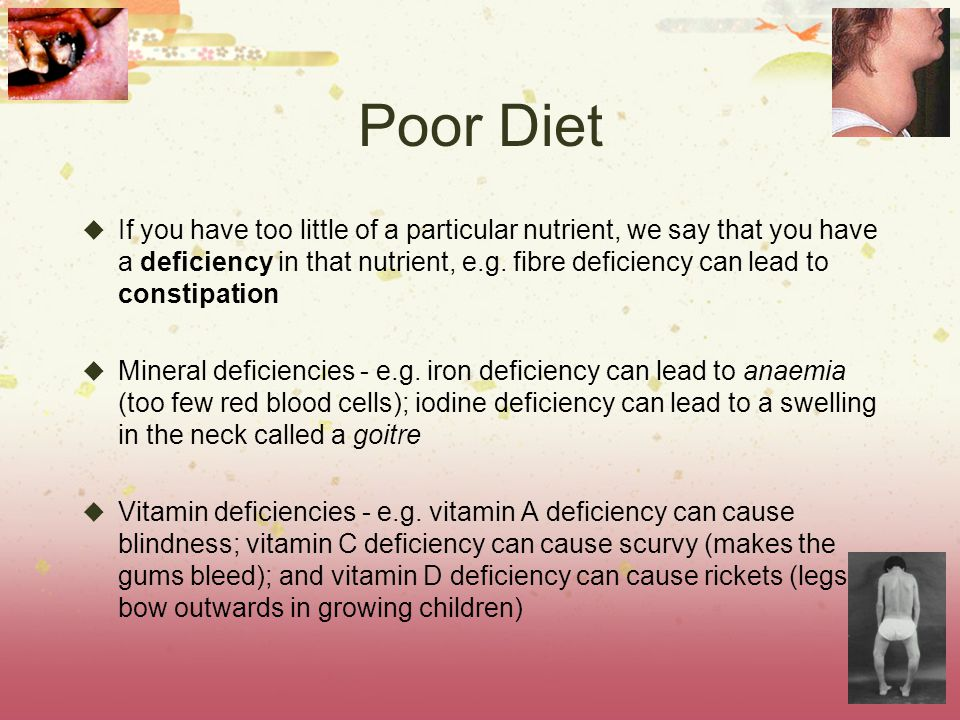 Poor Diet