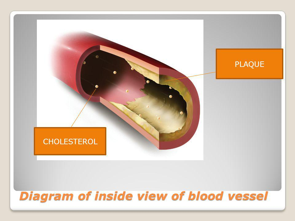 Diagram of inside view of blood vessel