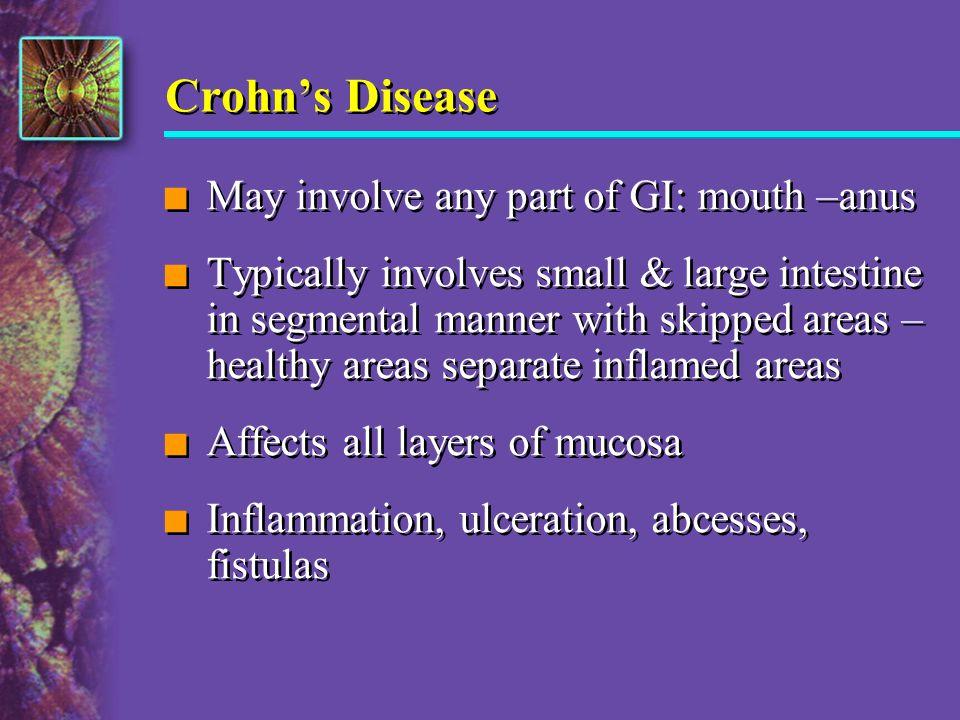 Crohn's Disease May involve any part of GI: mouth –anus