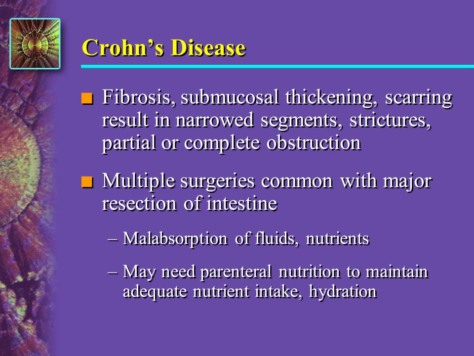 Crohn's Disease Fibrosis, submucosal thickening, scarring result in narrowed segments, strictures, partial or complete obstruction.