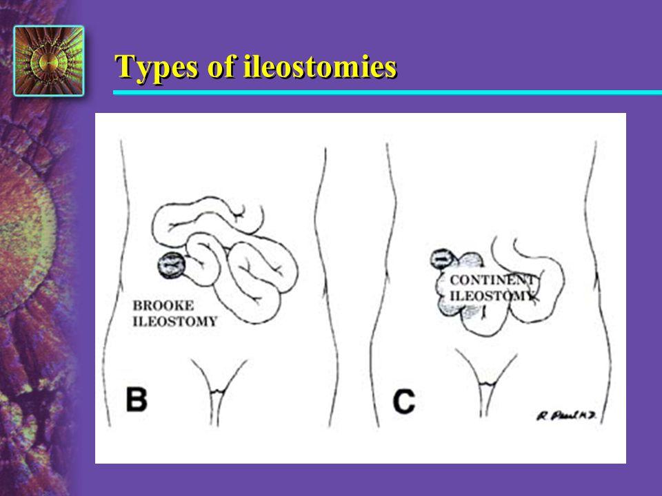 Types of ileostomies