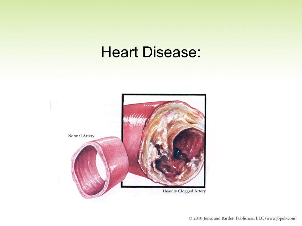 Heart Disease: