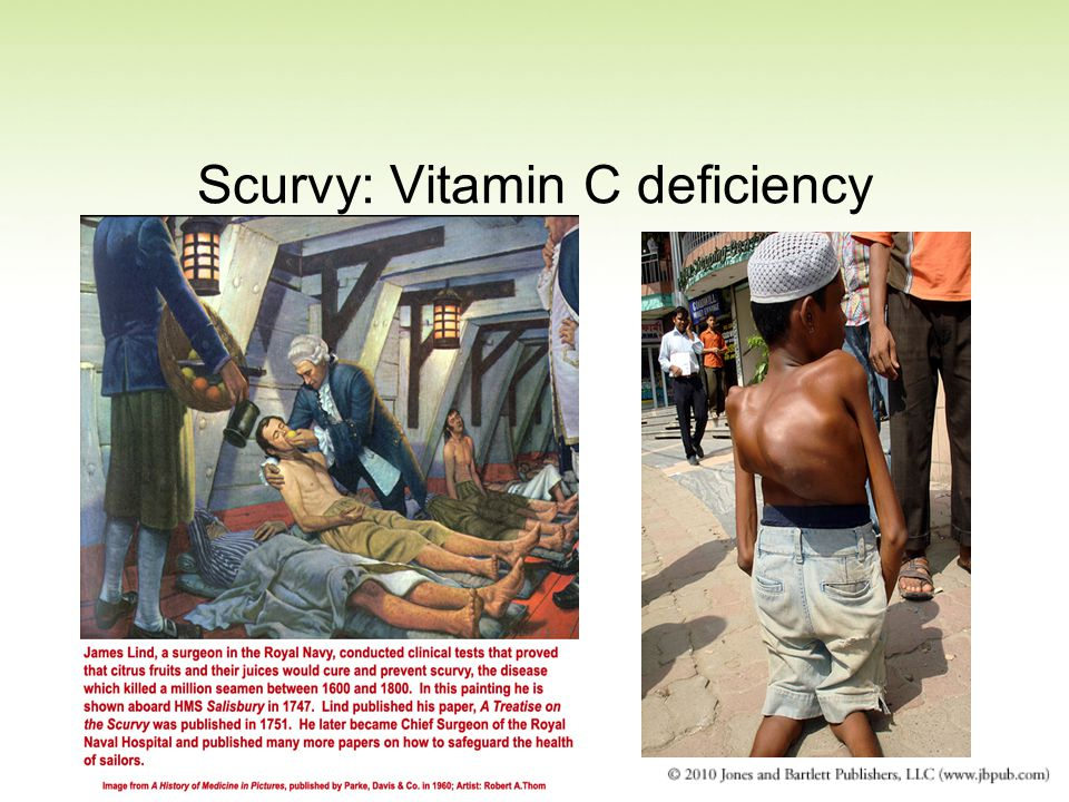 Scurvy: Vitamin C deficiency