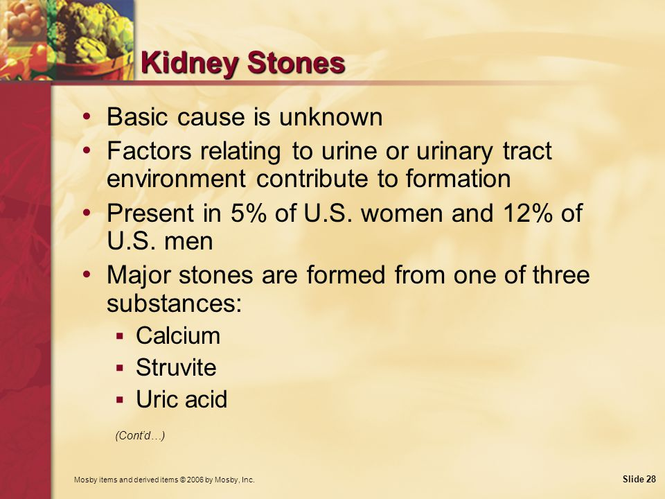 Kidney Stones Basic cause is unknown