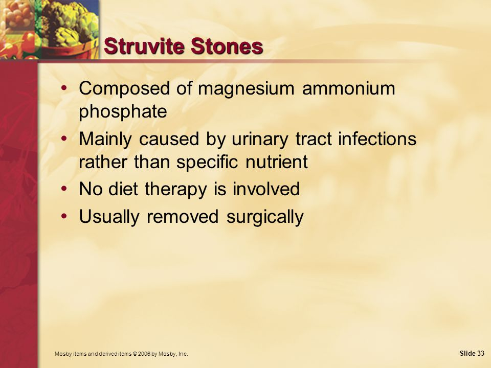 Struvite Stones Composed of magnesium ammonium phosphate