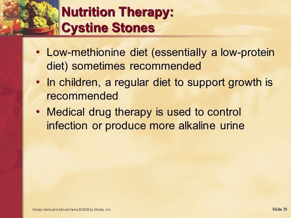 Nutrition Therapy: Cystine Stones