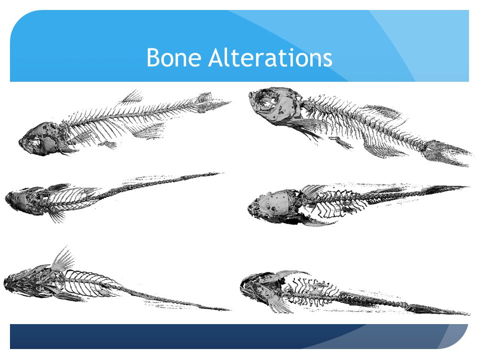 Bone Alterations