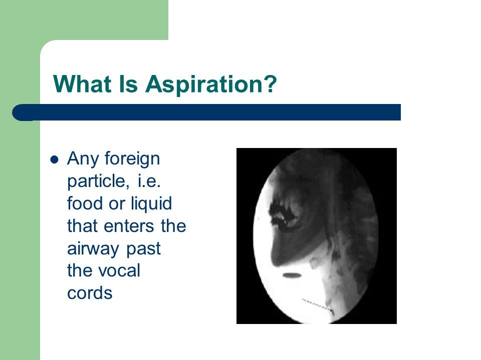 What Is Aspiration Any foreign particle, i.e. food or liquid that enters the airway past the vocal cords.