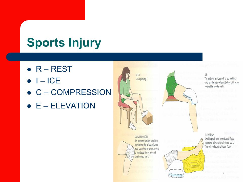 Sports Injury R – REST I – ICE C – COMPRESSION E – ELEVATION