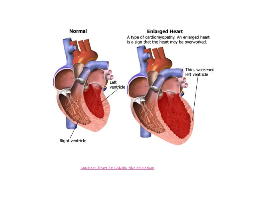 American Heart Assn-Media files Animations