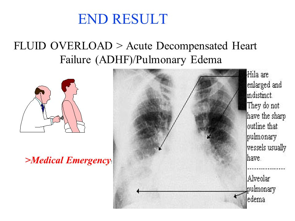 END RESULT FLUID OVERLOAD > Acute Decompensated Heart Failure (ADHF)/Pulmonary Edema.