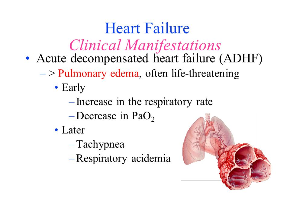 Heart Failure Clinical Manifestations