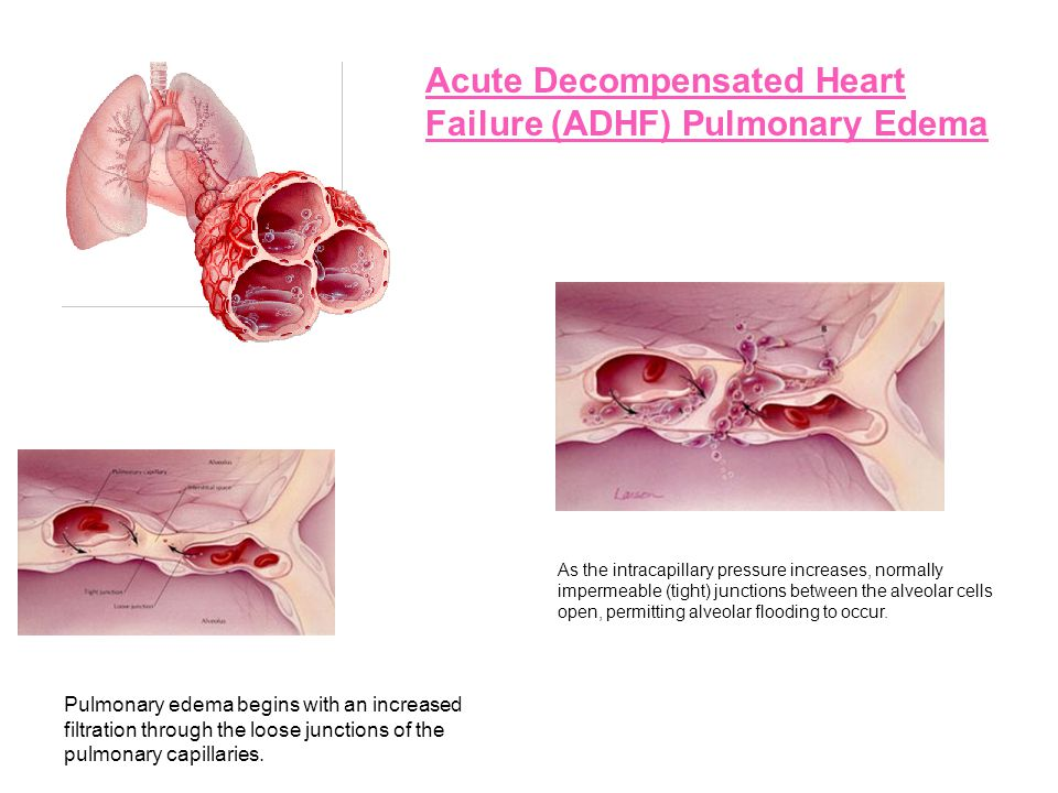 Acute Decompensated Heart Failure (ADHF) Pulmonary Edema