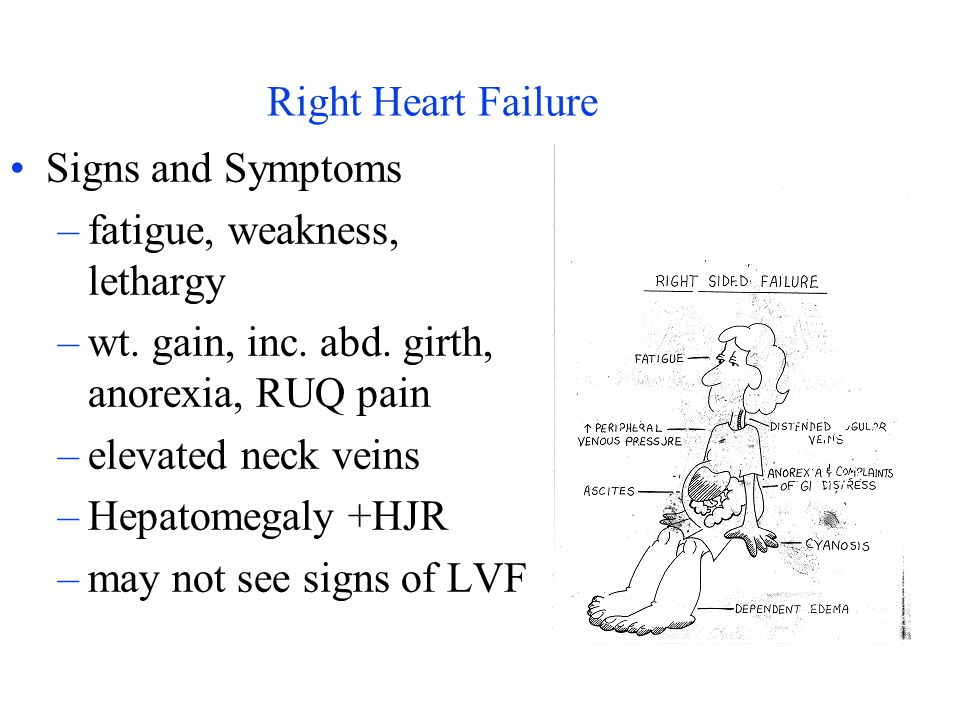 Right Heart Failure Signs and Symptoms. fatigue, weakness, lethargy. wt. gain, inc. abd. girth, anorexia, RUQ pain.