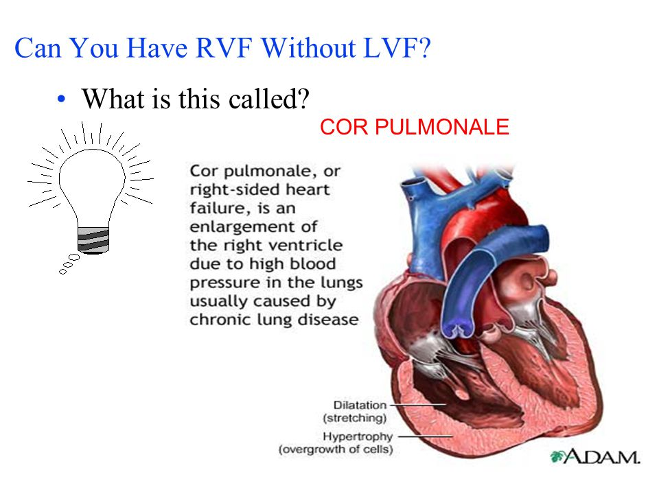 Can You Have RVF Without LVF