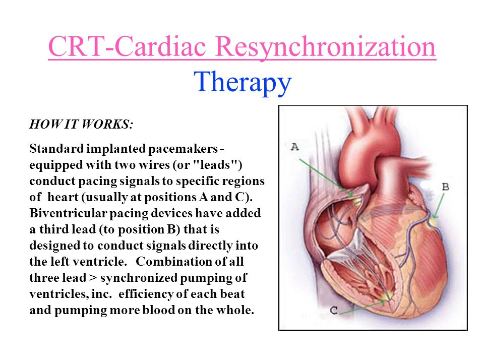 CRT-Cardiac Resynchronization Therapy