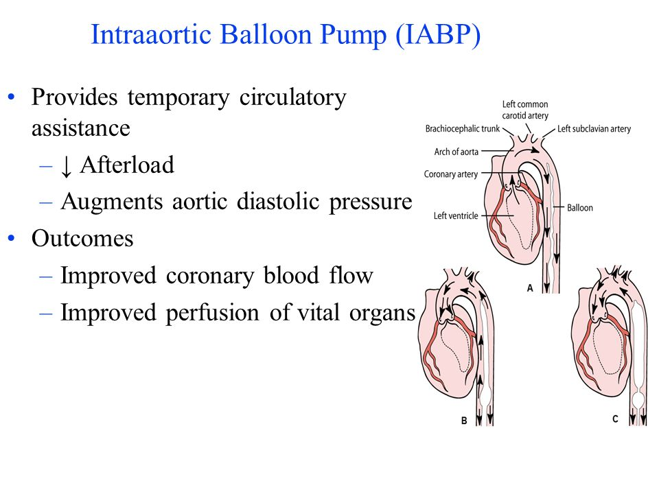 Intraaortic Balloon Pump (IABP)