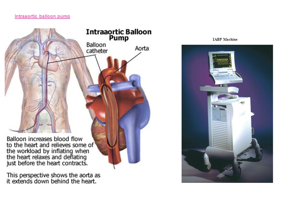 Intraaortic balloon pump