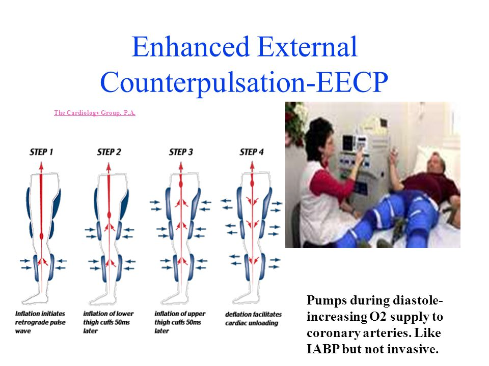 Enhanced External Counterpulsation-EECP