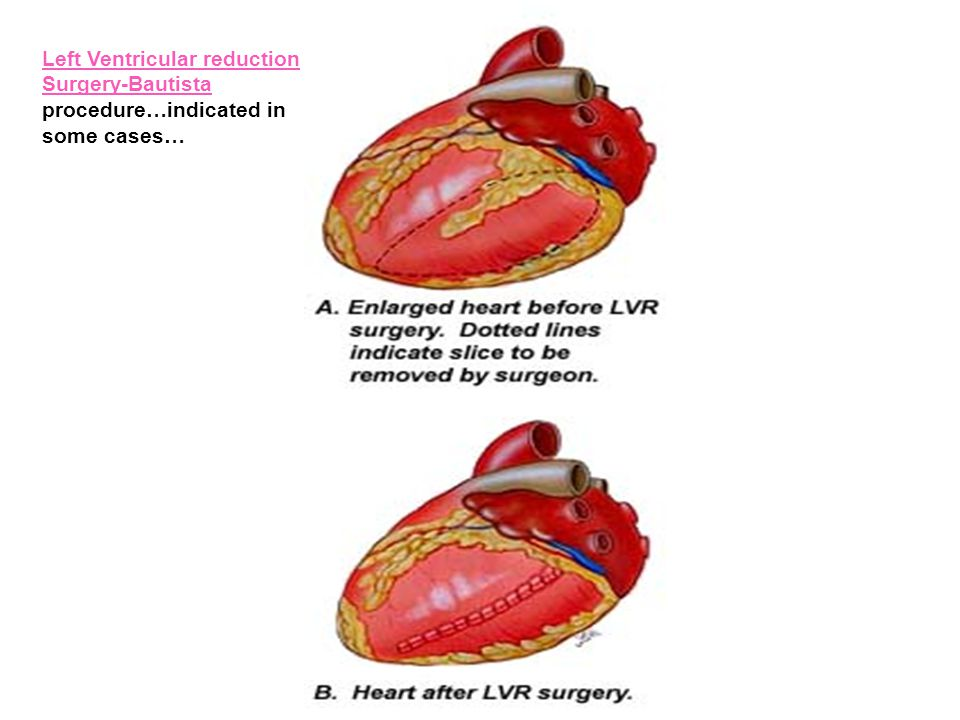 Left Ventricular reduction Surgery-Bautista procedure…indicated in some cases…