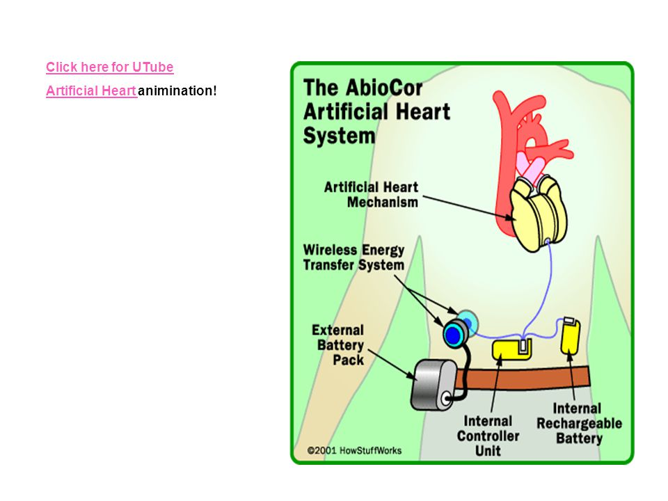Click here for UTube Artificial Heart animination!